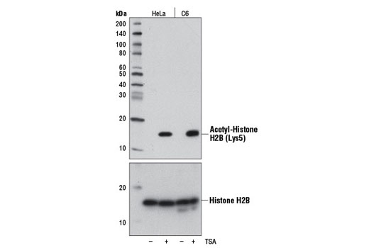Western Blotting Image 1: Acetyl-Histone H2B (Lys5) (D5H1S) XP® Rabbit mAb