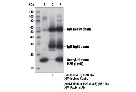 Immunoprecipitation Image 1: Acetyl-Histone H2B (Lys5) (D5H1S) XP® Rabbit mAb