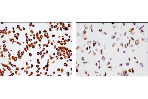 Immunohistochemical analysis of paraffin-embedded cell pellets, HT-29 (left) and U-2 OS (right), using MRP4/ABCC4 (D1Z3W) Rabbit mAb.