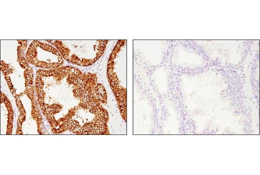 Immunohistochemical analysis of paraffin-embedded human prostate carcinoma using MRP4/ABCC4 (D1Z3W) Rabbit mAb in the presence of control peptide (left) or antigen-specific peptide (right).