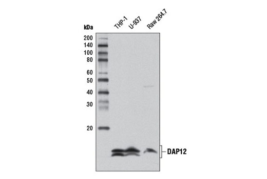 Western blot analysis of extracts from THP-1, U-937, and Raw 264.7 cells using DAP12 (D7G1X) Rabbit mAb.