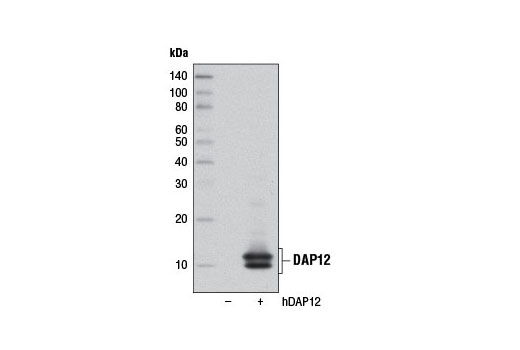 Western blot analysis of extracts from 293T cells, mock transfected (-) or transfected with a construct expressing full-length human DAP12 (hDAP12; +), using DAP12 (D7G1X) Rabbit mAb.