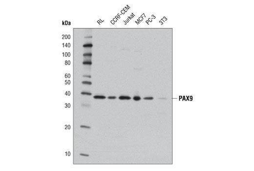Western blot analysis of extracts from various cell lines using PAX9 (D9F1N) Rabbit mAb.
