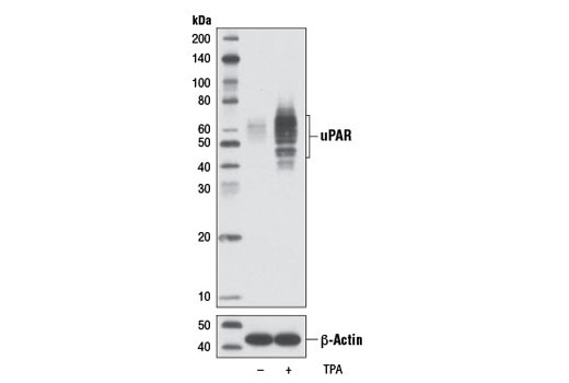 Western blot analysis of extracts from U-937 cells, untreated (-) or treated with TPA #4174 (200 nM, 72 hr; +), using uPAR (D4Q5S) Rabbit mAb (upper) or β-Actin (D6A8) Rabbit mAb #8457 (lower).