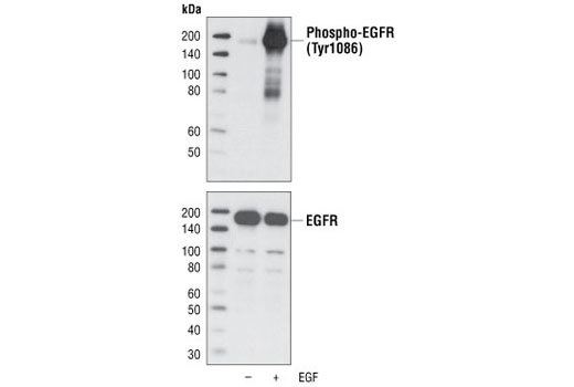 Mouse Calcium-Dependent Phospholipase a2 Activation - count 20