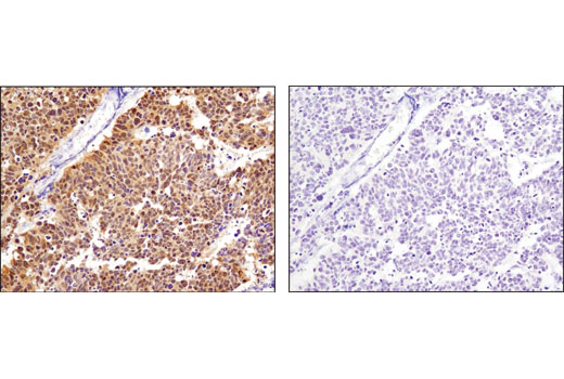 Immunohistochemical analysis of paraffin-embedded human lung carcinoma using CDK4 (D9G3E) Rabbit mAb in the presence of control peptide (left) or antigen-specific peptide (right).