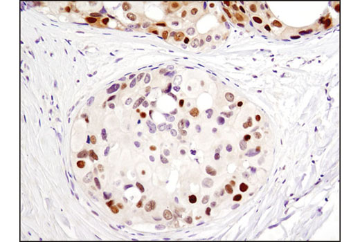 Immunohistochemical analysis of paraffin-embedded human breast carcinoma using CDK4 (D9G3E) Rabbit mAb.