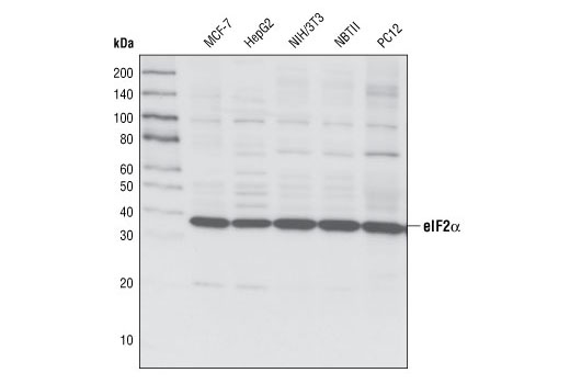 Western blot analysis of extracts from various cell types using eIF2α (L57A5) Mouse mAb.