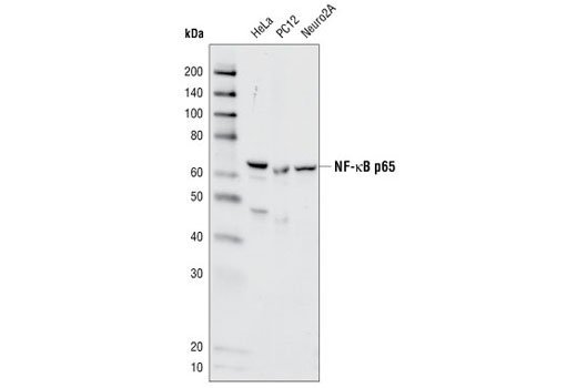 Western blot analysis of extracts from HeLa (human), PC12 (rat) and Neuro2A (mouse) cell lines using NF-κB p65 (C22B4) Rabbit mAb.