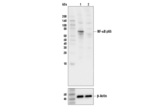 Western blot analysis of HeLa cell extracts, untreated (-) or NF-κB p65 knock-out (+), using NF-κB p65 (C22B4) Rabbit mAb #4764 (upper) or β-actin (13E5) Rabbit mAb #4970 (lower).