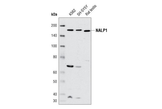 Western blot analysis of extracts from K-562 and SH-SY5Y cells and from rat testis using NALP1 Antibody.