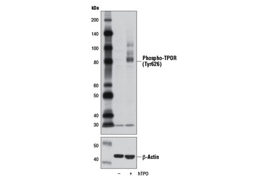 Monoclonal Antibody - Phospho-TPOR (Tyr626) (D3H7B) Rabbit mAb, UniProt ID P40238, Entrez ID 4352 #12712 - Immunology and Inflammation