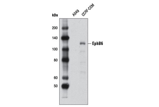 Western blot analysis of extracts from A549 (negative) and CCRF-CEM (positive) cells using EphB6 Antibody.