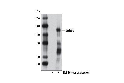 Polyclonal Antibody - EphB6 Antibody - Immunoprecipitation, Western Blotting, UniProt ID O15197, Entrez ID 2051 #12560