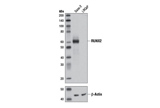 Western blot analysis of extracts from Saos-2 and LNCaP cells using RUNX2 (D1L7F) Rabbit mAb and β-Actin (D6A8) Rabbit mAb #8457.