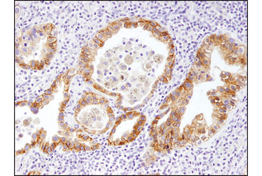 Immunohistochemical analysis of paraffin-embedded non-small cell lung carcinoma using HER3/ErbB3 (D22C5) XP<sup>®</sup> Rabbit mAb.