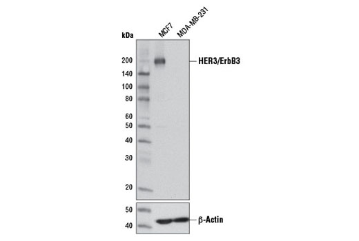 Western blot analysis of extracts from MCF7 (HER3+) and MDA-MB-231 (HER3-) cells using HER3/ErbB3 (D22C5) XP<sup>®</sup> Rabbit mAb (upper) or β-Actin (D6A8) Rabbit mAb #8457 (lower).