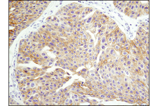 Immunohistochemical analysis of paraffin-embedded breast carcinoma using HER3/ErbB3 (D22C5) XP<sup>®</sup> Rabbit mAb.
