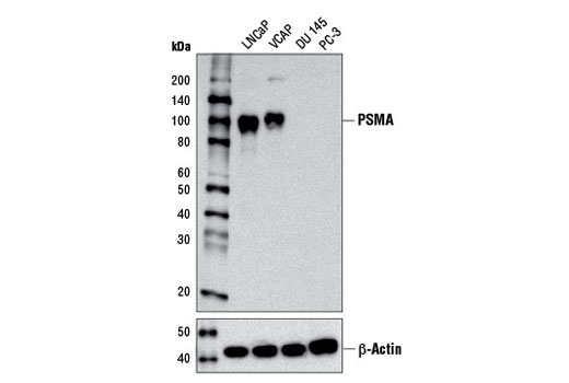 Western blot analysis of extracts from various cell lines using Prostate Specific Membrane Antigen (D4S1F) Rabbit mAb (upper) or β-Actin (D6A8) Rabbit mAb #8457 (lower)