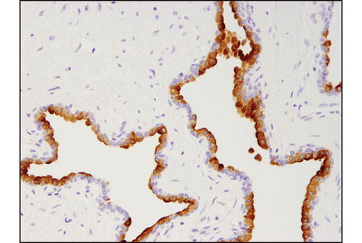 Immunohistochemical analysis of paraffin-embedded human prostate adenocarcinoma using Prostate Specific Membrane Antigen (D7I8E) XP<sup>®</sup> Rabbit mAb.