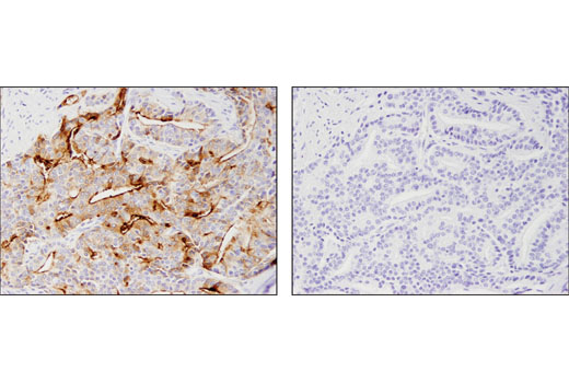 Immunohistochemical analysis of paraffin-embedded human prostate adenocarcinoma using Prostate Specific Membrane Antigen (D7I8E) XP<sup>®</sup> Rabbit mAb in the presence of control peptide (left) or antigen-specific peptide (right).