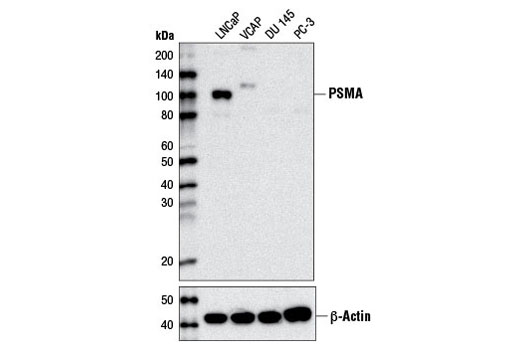 Western blot analysis of extracts from various cell lines using Prostate Specific Membrane Antigen (D7I8E) XP<sup>®</sup> Rabbit mAb (upper) or β-Actin (D6A8) Rabbit mAb #8457 (lower).