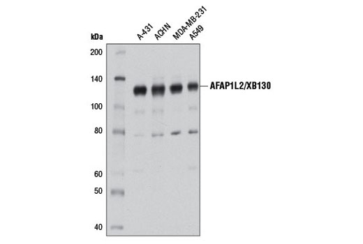 Western Blot analysis of extracts from various cell types using AFAP1L2/XB130 (D1B5) Rabbit mAb.
