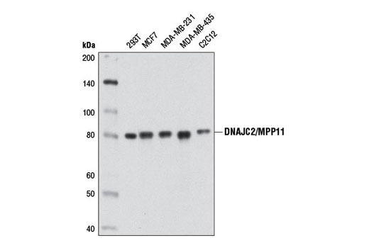 Western blot analysis of extracts from various cell lines using DNAJC2/MPP11 (D6B1E) Rabbit mAb.
