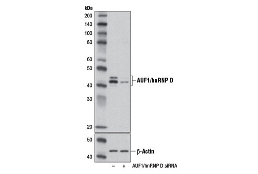 siRNA Transfection Rna Catabolic Process