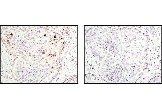 Immunohistochemical analysis of paraffin-embedded human breast carcinoma using p21 Waf1/Cip1 (12D1) Rabbit mAb in the presence of control peptide (left) or antigen-specific peptide (right).