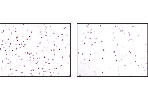 Immunohistochemical analysis of paraffin-embedded HeLa cells, transfected with SignalSilence<sup>®</sup> Control siRNA (Unconjugated) #6568 (left) or SignalSilence<sup>® </sup>p21 Waf1/Cip1 siRNA II #6558 (right), using p21 Waf1/Cip1 (12D1) Rabbit mAb.