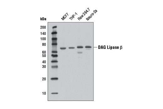 Monoclonal Antibody - DAG Lipase β (D4P7C) Rabbit mAb - Immunoprecipitation, Western Blotting, UniProt ID Q8NCG7, Entrez ID 221955 #12574 - Primary Antibodies