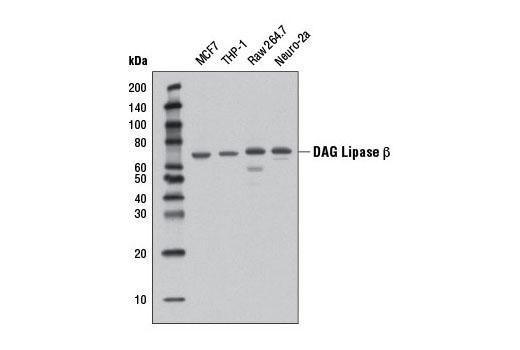 Monoclonal Antibody - DAG Lipase β (D4P7C) Rabbit mAb - Immunoprecipitation, Western Blotting, UniProt ID Q8NCG7, Entrez ID 221955 #12574