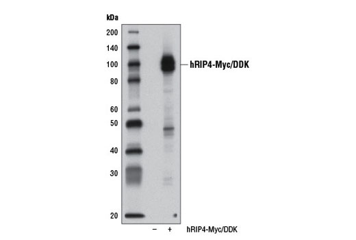 Polyclonal Antibody - RIP4 Antibody - Immunoprecipitation, Western Blotting, UniProt ID P57078, Entrez ID 54101 #12636, Antibodies to Kinases