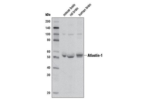 Monoclonal Antibody - Atlastin-1 (D2E6) Rabbit mAb - Western Blotting, UniProt ID Q8WXF7, Entrez ID 51062 #12728, Atlastin