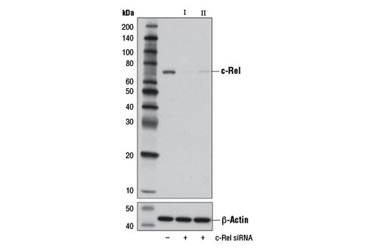 Western blot analysis of extracts from Neuro-2a cells, transfected with 100 nM SignalSilence<sup>®</sup> Control siRNA (Unconjugated) #6568 (-), SignalSilence<sup>®</sup> c-Rel siRNA I (Mouse Specific) #13058 (+) or SignalSilence<sup>®</sup> c-Rel siRNA II (Mouse Specific) #13170 (+), using c-Rel (D4Y6M) Rabbit mAb (upper) or β-Actin (D6A8) Rabbit mAb #8457 (lower). The c-Rel (D4Y6M) Rabbit mAb confirms silencing of c-Rel expression, while the β-Actin (D6A8) Rabbit mAb is used as a loading control.