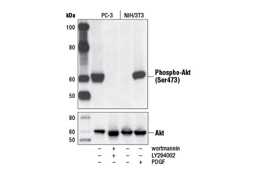 Western blot analysis of extracts from PC-3 cells, untreated or LY294002/wortmannin-treated, and NIH/3T3 cells, serum-starved or PDGF-treated, using Phospho-Akt (Ser473) (D9E) XP<sup>®</sup> Rabbit mAb (upper) or Akt (pan) (C67E7) Rabbit mAb #4691 (lower).