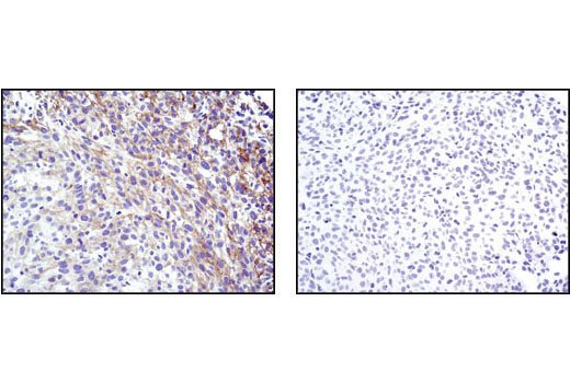 Image 34: Phospho-EGF Receptor Pathway Antibody Sampler Kit