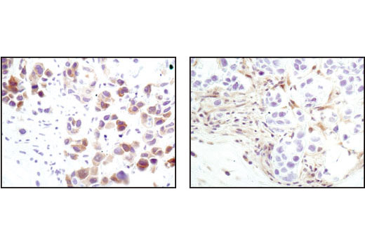 Immunohistochemical analysis of paraffin-embedded MDA-MB-468 xenograft using Phospho-Akt (Ser473) (D9E) XP<sup>®</sup> Rabbit mAb (left) or PTEN (138G6) Rabbit mAb #9559 (right). Note the presence of P-Akt staining in the PTEN deficient MDA-MB-468 cells.