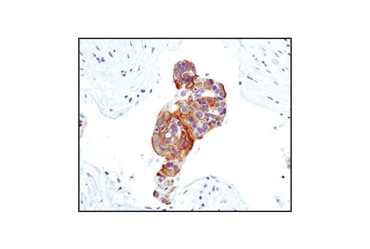 Image 30: Phospho-EGF Receptor Pathway Antibody Sampler Kit