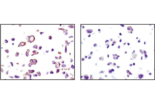 Immunohistochemical analysis using Phospho-Akt (Ser473) (D9E) XP<sup>®</sup> Rabbit mAb on SignalSlide® Phospho-Akt (Ser473) IHC Controls #8101 (paraffin-embedded LNCaP cells, untreated (left) or LY294002-treated (right)).