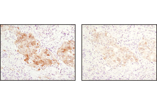Immunohistochemical analysis of paraffin-embedded human breast carcinoma comparing SignalStain<sup>®</sup> Antibody Diluent #8112 (left) to TBST/5% normal goat serum (right) using Phospho-Akt (Ser473) (D9E) XP<sup>®</sup> Rabbit mAb #4060.