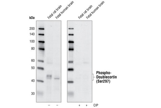 Western blot analysis of extracts from fetal rat and fetal human brain using Phospho-Doublecortin (Ser297) Antibody. The phospho-specificity of the antibody was verified by treating the membrane with (+) or without (-) calf intestinal phosphatase (CIP) after Western transfer.