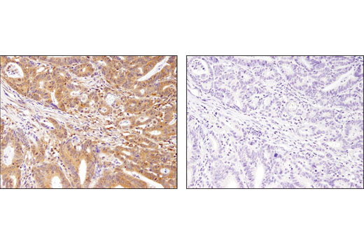 Immunohistochemical analysis of paraffin-embedded colon adenocarcinoma using MEK1 (D2R1O) Rabbit mAb in the presence of control peptide (left) or antigen-specific peptide (right).