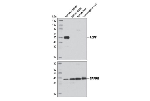 Monoclonal Antibody Acid Phosphatase Activity