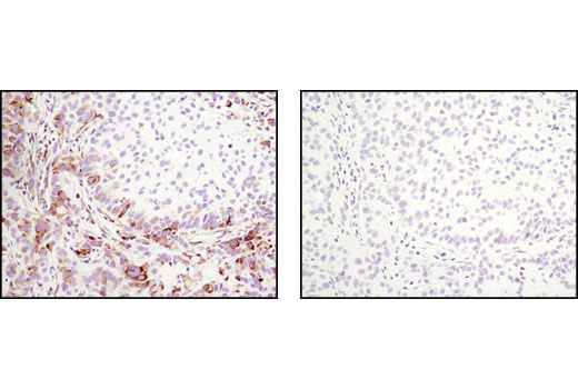 Image 29: p70 S6 Kinase Substrates Antibody Sampler Kit