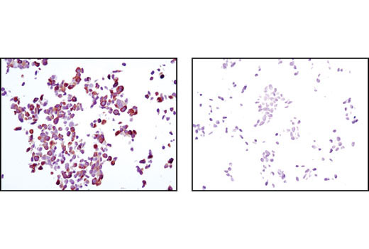 Immunohistochemical analysis of paraffin-embedded LNCaP cells, untreated (left) or rapamycin-treated (right), using Phospho-S6 Ribosomal Protein (Ser235/236) (D57.2.2E) XP<sup>®</sup> Rabbit mAb.
