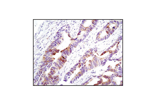 Immunohistochemical analysis of paraffin-embedded human colon carcinoma using Phospho-S6 Ribosomal Protein (Ser235/236) (D57.2.2E) XP<sup>®</sup> Rabbit mAb.