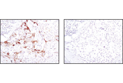 Immunohistochemical analysis of paraffin-embedded human breast carcinoma using Phospho-S6 Ribosomal Protein (Ser235/236) (D57.2.2E) XP<sup>®</sup> Rabbit mAb in the presence of control peptide (left) or Phospho-S6 Ribosomal Protein (Ser235/236) Blocking Peptide #1220 (right).