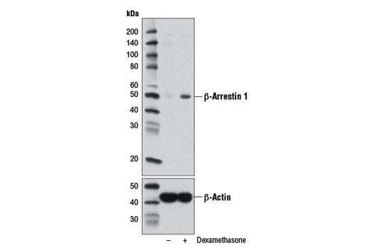 Western blot analysis of extracts from A549 cells, vehicle-treated (-) or treated with dexamethasone (100 nM, 24 h; +), using β-Arrestin 1 (D8O3J) Rabbit mAb (upper) and β-Actin (D6A8) Rabbit mAb #8457 (lower).